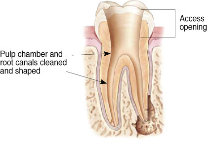 Cross-section diagram of a tooth cleared of its pulp and roots in preparation for a filling